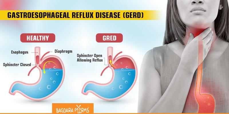 Effects of curcumin on reflux , Gastroesophageal reflux disease ,