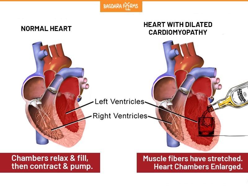 Alcoholic Cardiomyopathy , symptoms of Alcoholic Cardiomyopathy , Heavy Alcohol Consumption