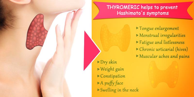 Hashimoto S Disease Causes Symptoms And Treatment