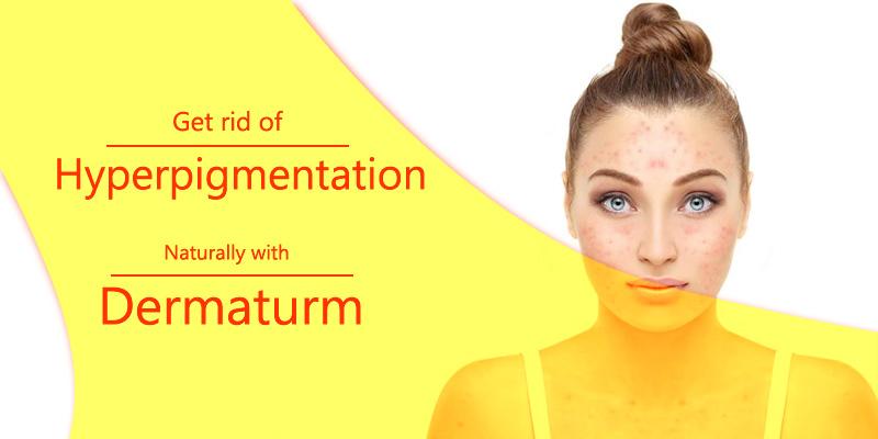 Dermaturm to Treat Hyper pigmentation naturally