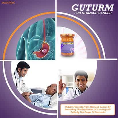 Prevent Gastrointestinal Stromal Tumors (GIST)