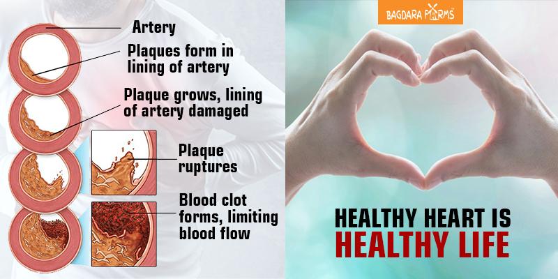 एथेरोस्क्लेरोसिस , Carotid Artery Disease , Coronary Arteries disease , Carotid Artery Disease , Peripheral artery disease